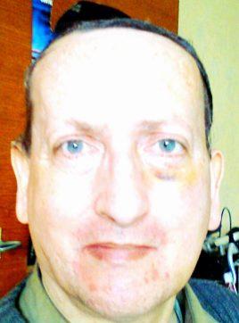 Bonk Gilles, 55 ans, Glenroy, Australie
